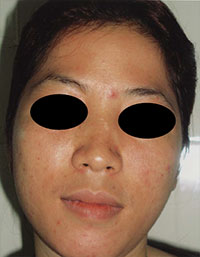 Removal Of Pigmented Lesions Lasermed Laser Hair