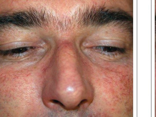 getting rid of thread veins on the nose lasermed laser hair