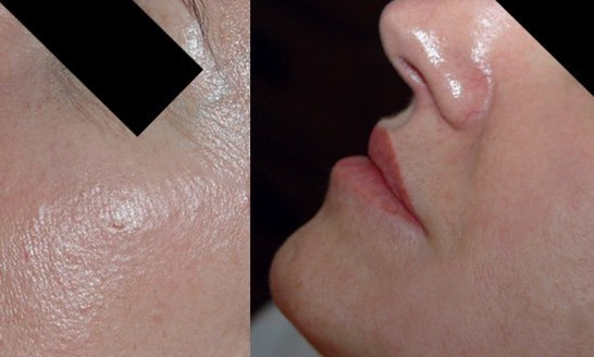 3.13 Dermapen before and after crop