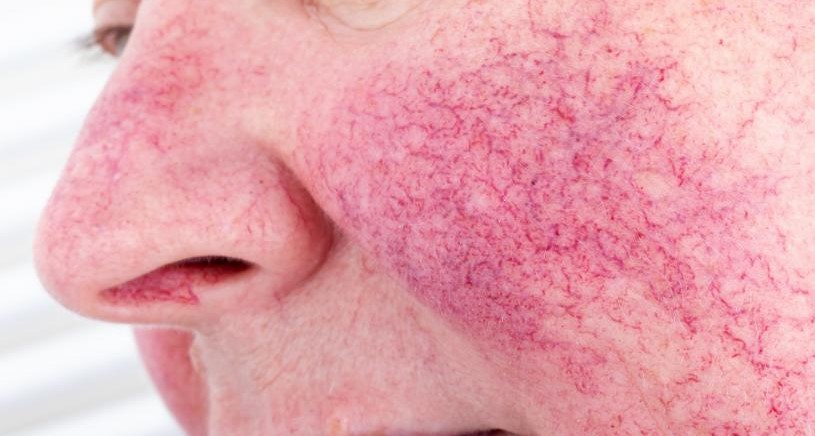 Manage rosacea effectively